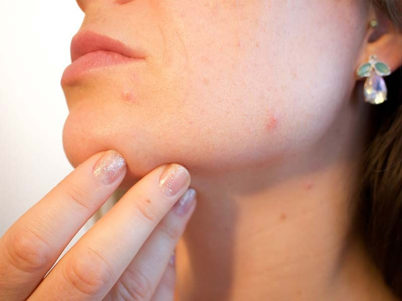 Know About Technique Of Medical Acne Treatments